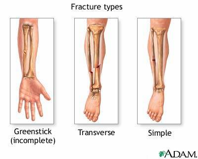 types of fractures, Human Body